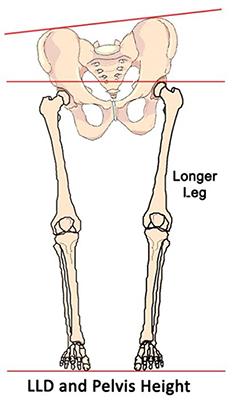 1ea46f3727 Is a Leg Length Discrepancy Causing Your Client's Pain? | Article |  PTontheNet