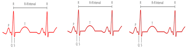 hear rate interval regular