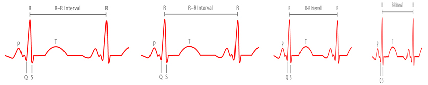 heart rate interval variation