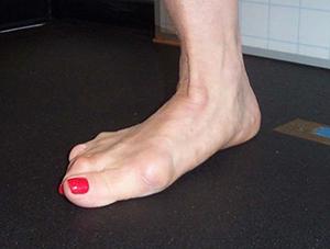 nude Feet Sue Perkins (76 photos) Paparazzi, Twitter, butt
