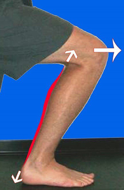 bungee cord action of soleus and achilles