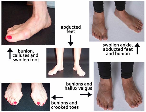 feet chart